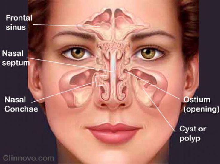 Mengobati Sinusitis Dengan Terapi Lintah ⋆ Terapi Lintah Guharto http://terapilintah.com/khasiat-manfaat-minyak-lintah/