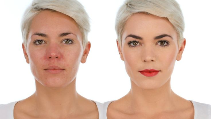 If you have uncomfortable facial redness, you need to see this simple makeup tutorial on camouflage for rosacea, red or ruddy skin coloring. #Makeup_tutorial_for_rosacea, red or ruddy skin coloring.  http://www.womanyes.com/perfect-makeup-camouflage-for-rosacea-red-or-ruddy-skin/