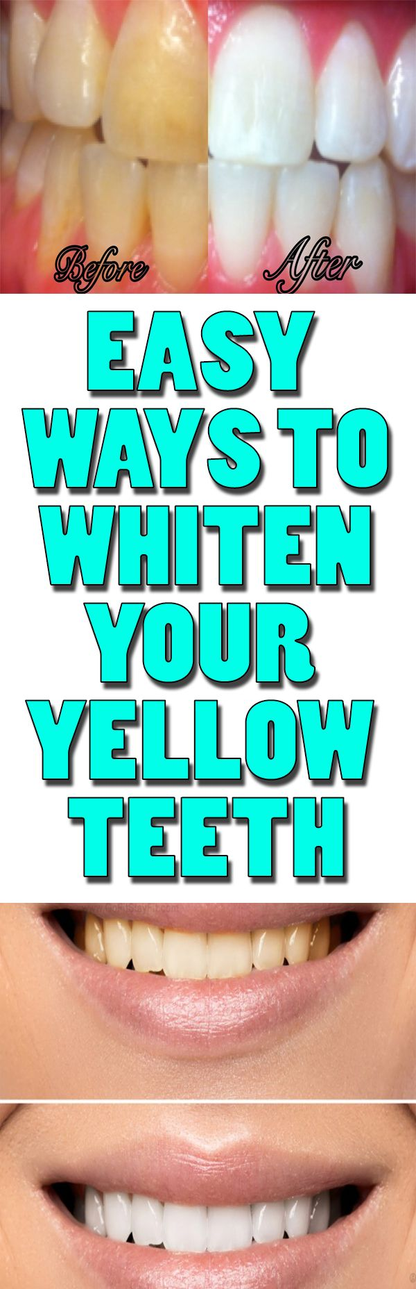 This is how to easily whiten your yellow teeth. Quick and effective ! Please REPIN this !