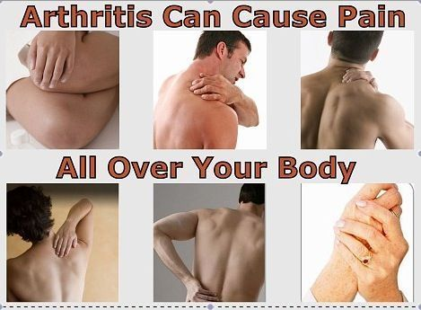 thesis about arthritis All information contained within the johns hopkins arthritis center website is intended for educational purposes only physicians and other health care professionals are encouraged to consult other sources and confirm the information contained within this site.