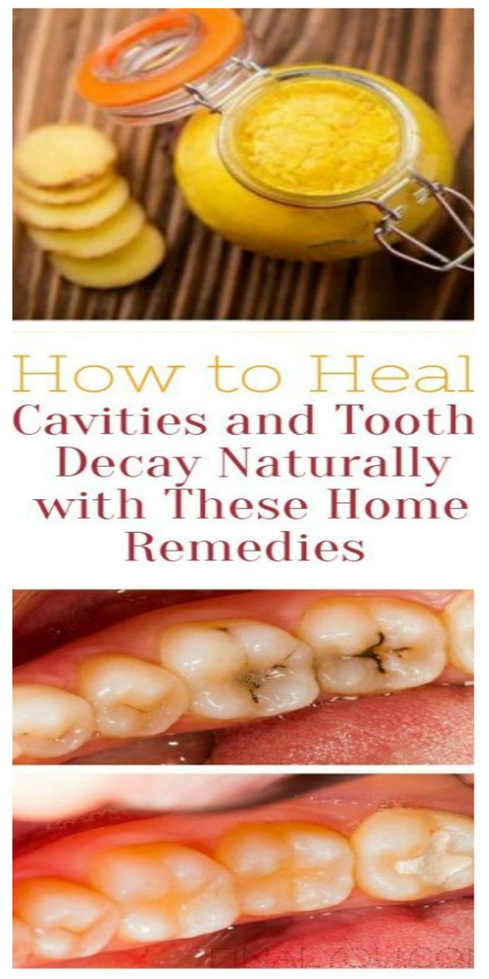 The following are a few recipes to heal cavities and tooth decay