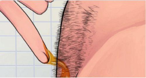 Beaucoup de gens, surtout les femmes, enlèvent les poils indésirables sur les aisselles, les jambes ou autour les organes génitaux. Le rasage quotidien peut être ennuyeux après un certain temps. La Cire est une alternative plus durable. Nous vous proposons une méthode pour préparer la cire nécessaire chez vous en un tournemain, si vous voulez …