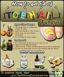 A total game changer  types of toe fungus
