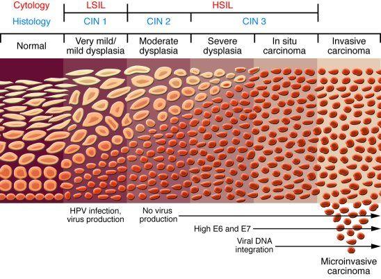 Anal carcinoma in situ