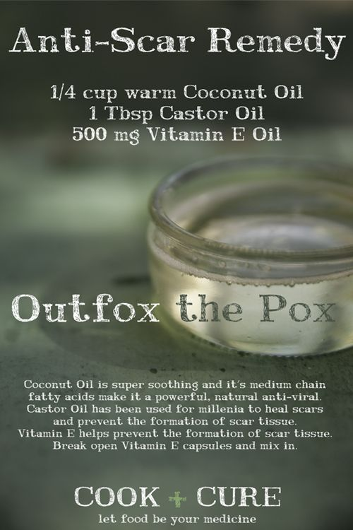 Powerful anti-scar remedy that prevents scars from forming & may even reduce the appearance of old scars.  It is especially effective if you're suffering from chicken pox or shingles.    First warm the coconut oil until it's a liquid.  Mix 1 Tbsp Castor Oil, & 500mg Vitamin E Oil with 1/4 cup Extra Virgin Coconut Oil in a small container.  Mix together and apply liberally to the affected areas two to three times per day.   More at Cook + Cure www.cookandcure.com