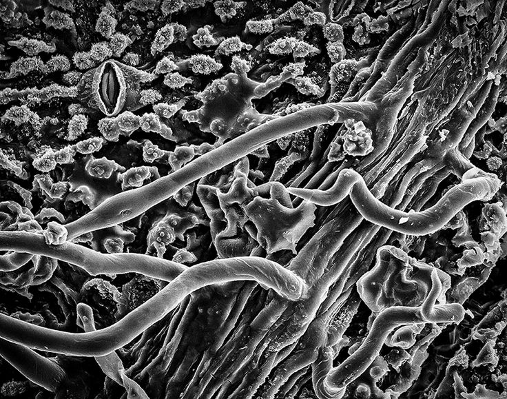 The sinister beauty of plant cells | Plant cell, Plants ...