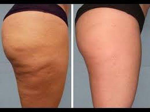 Bumbum e pernas lisinhos: exercícios para acabar com a celulite :
