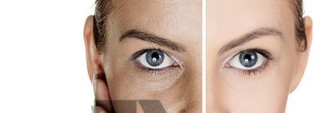 Natural and Home remedies for Dark marks on Face / Skin