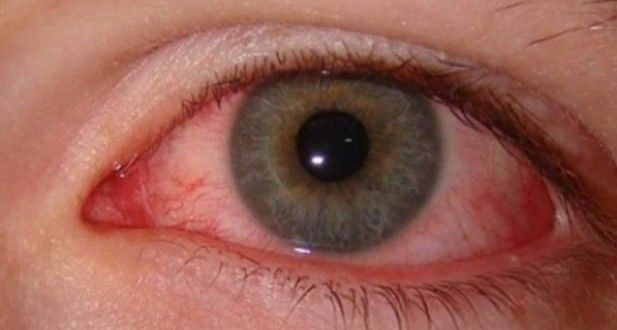 How do You Get Pink Eye
