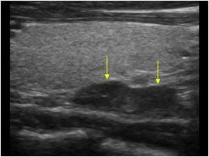 WK 1 THYROID Parathyroid adenoma Longitudinal