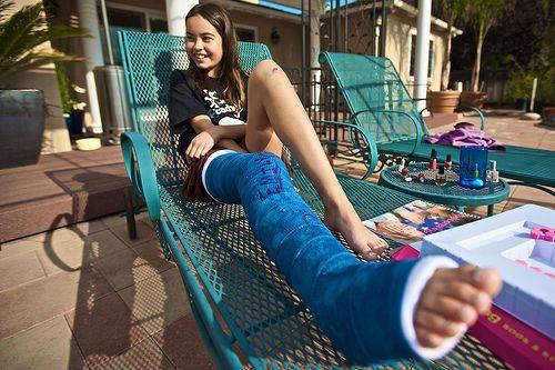 Purpose Of Long Leg Casts 67