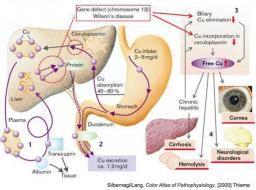 Wilson Disease Gene Defect Chromosome 13