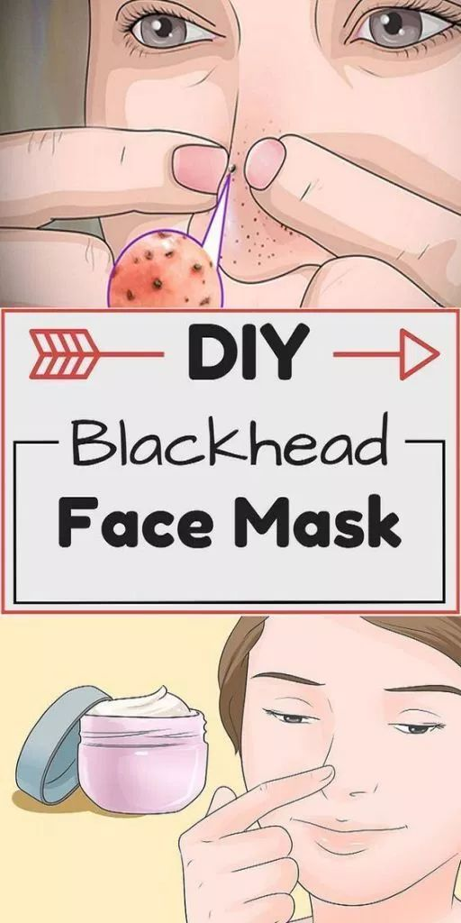 DIY Face Mask Recipe: How To Get Rid Of Blackheads…
