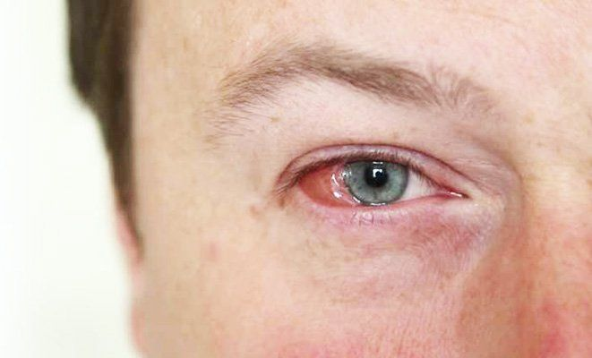 Do your eyes look pink and feel like they have grains of
