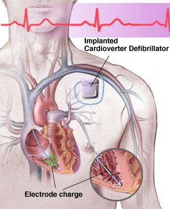 Universal Cardiac Solutions LLC - Cardiac Device Implants- implanted cardioverter defibrillator (ICD)