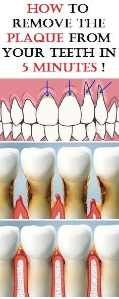 BE YOUR OWN DENTIST! SEE HOW TO REMOVE THE PLAQUE FROM TEETH IN JUST 5 MINUTES!