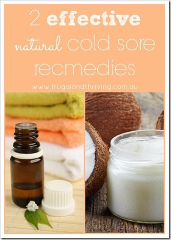 two effective natural cold sore remedies