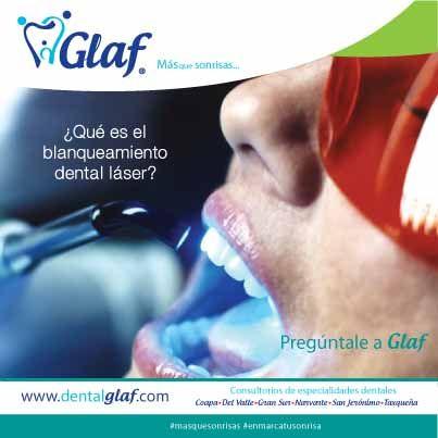 El Blanqueamiento Dental consiste en quitar las manchas o color amarillento de los dientes mediante un producto químico especializado y un láser dental, observándose el resultado en la primera cita.