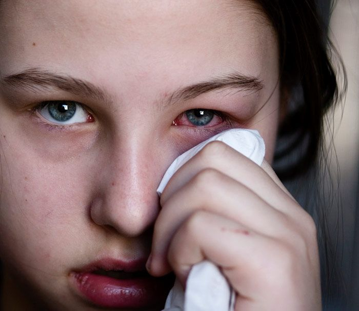 How long is pink eye contagious? Find out how long symptoms of pink eye usually last and treatment options.