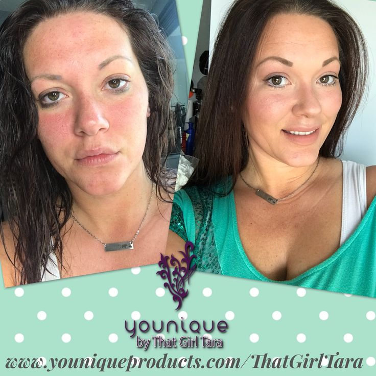 Younique Mineral touch foundation  works miracles!!! Before and After! #thatgirltara #youniquebeforeandafter