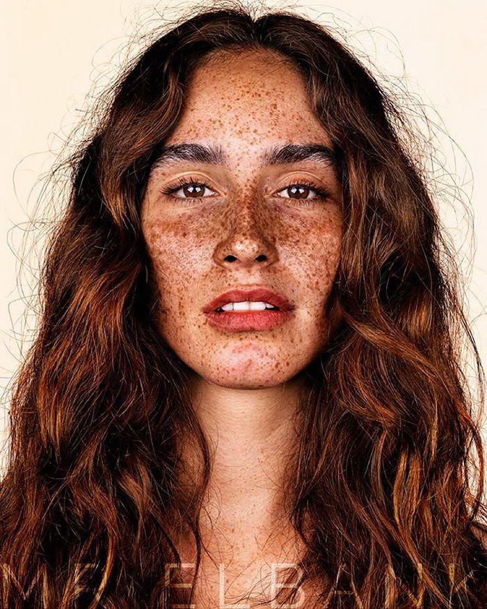 Les taches rouges de pigment sur le corps
