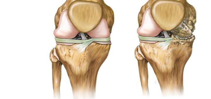 Colágeno Marino Hidrolizado para la salud osteo-articular