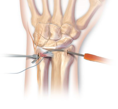 The triangular fibrocartilage complex (TFCC) is a cartilage structure located on the small finger side of the wrist that, cushions and supports the small carpal bones in the wrist. The TFCC keeps the forearm bones (radius and ulna) stable when the hand grasps or the forearm rotates. An injury or tear to the TFCC can cause chronic wrist pain.
