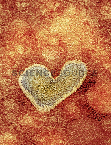 SG5461:H5N1 avian influenza virus particle, TEM   ©NIBSC/Science Source #science #virus #influenza #h5n1 #flu #avianinfluenza #heart #valentinesday http://images.sciencesource.com/preview/11818375/SG5461.html