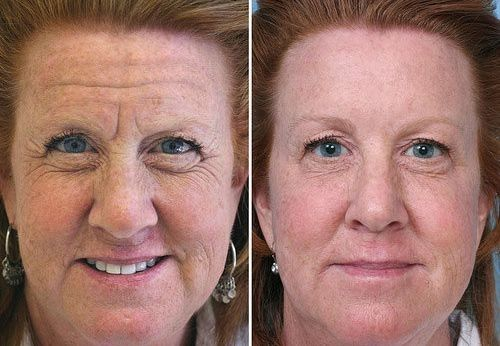 Face Flexing Exercises Only Take Several Minutes A Day To Look Years Younger