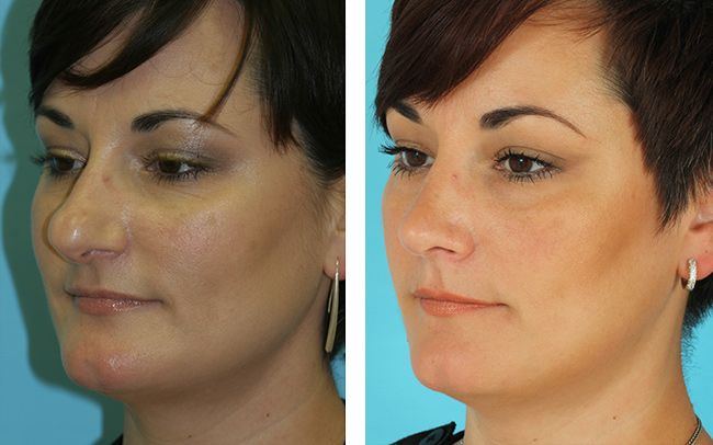 8 Best Patient Before & After Photos: SEPTOPLASTY Images