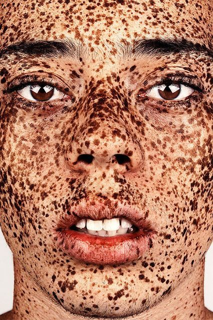 "Breathtaking Photos Show The Undeniable Beauty Of Freckles #refinery29  http://www.refinery29.com/2016/01/101631/brock-elbank-freckles-photography#slide-7  ""Elliott…is such amazing subject matter,"" Elbank says. ""I was tagged in one of his Instagram shots, and once I see someone like this, I'm like a dog with a bone and I will try my hardest to get them on board [with] the series, simply because they enrich it; they make it."" Elbank will shoot Elliott's younger brother for an upcoming…"