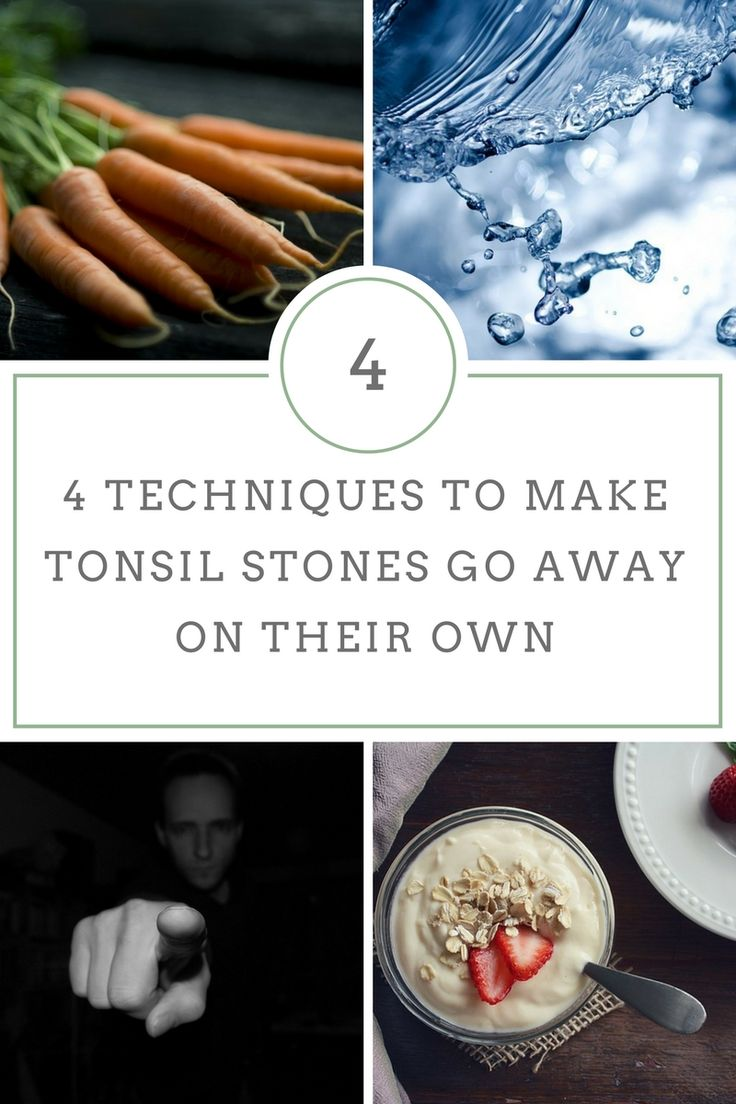 Can tonsil stones go away on their own?  4 Techniques to make tonsil stones go away on their own..