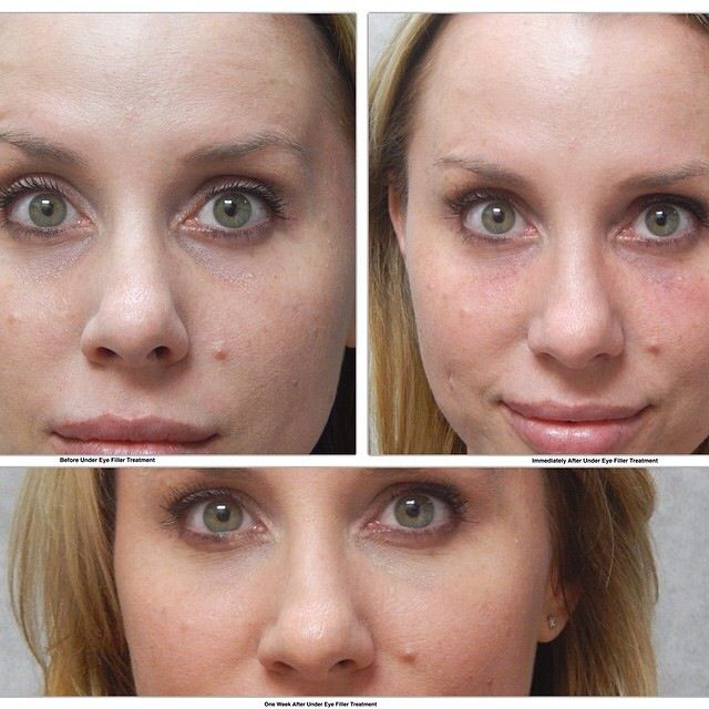 1/2 syringe of Restylane under eyes for natural correction of under eye hollows. Luxe Aesthetic & Wellness Center, Yorba Linda Ca
