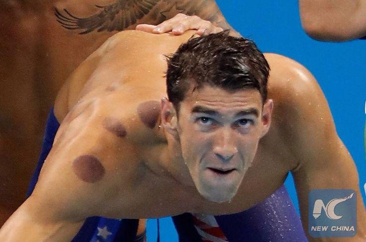 Bańki chińskie na olimpiadzie. Nawet złoci medaliści mistrzostw stosują metody medycyny chińskiej. Polecamy