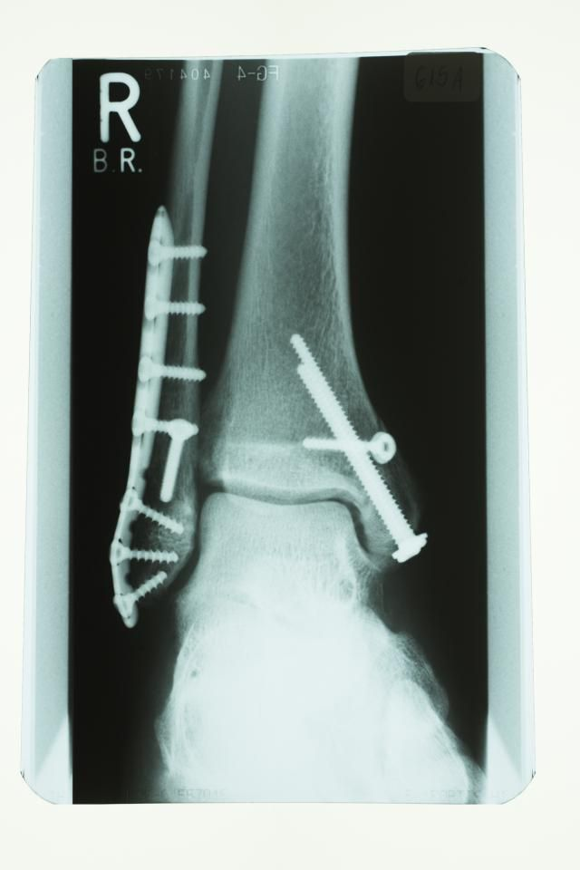 What Is The Purpose Of Ankle Fracture Surgery?