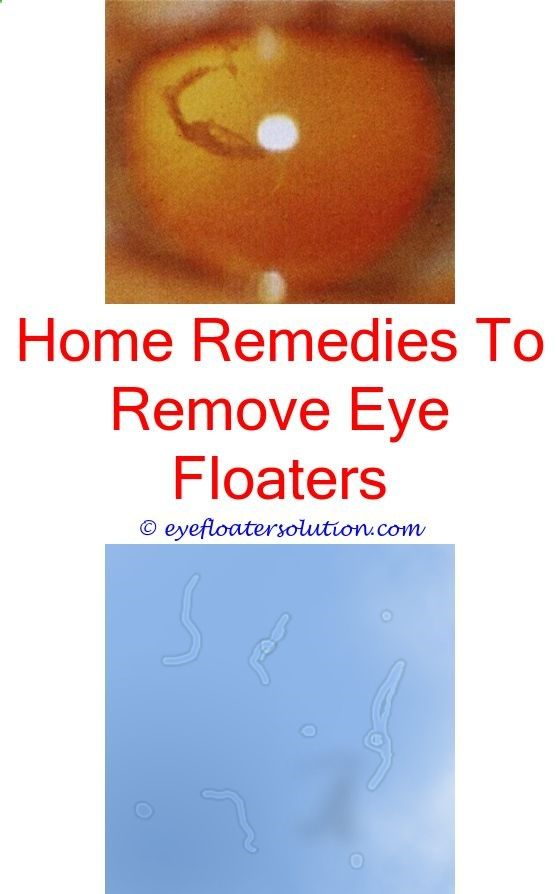 how to stop eye floaters link between seratonin and eye