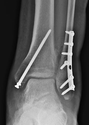 Ankle fractures are common injuries that sometimes require surgery. Read how orthopaedic foot and ankle specialists repair broken ankles: http://www.aofas.org/footcaremd/treatments/Pages/Ankle-Fracture-Surgery.aspx