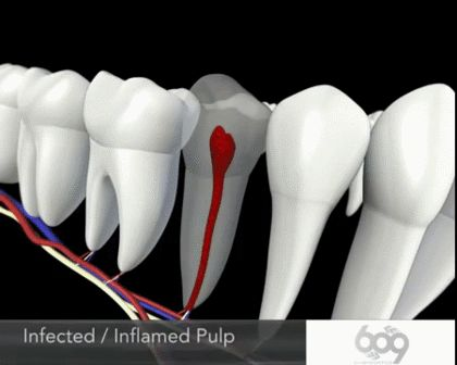 How a root canal is removed and filled