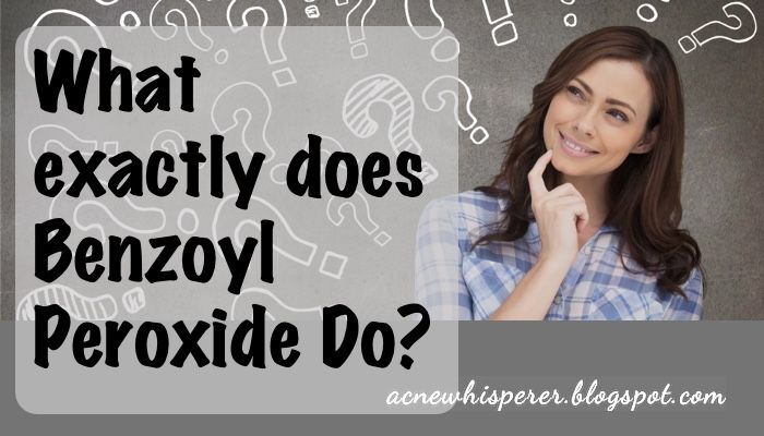 The Acne Whisperer: Is Benzoyl Peroxide The Devil ?