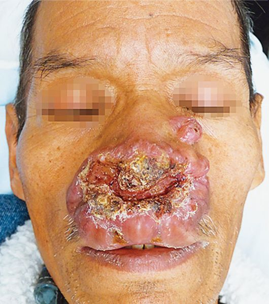 NEJM - Image Challenge: Rhinoscleroma is a chronic ...
