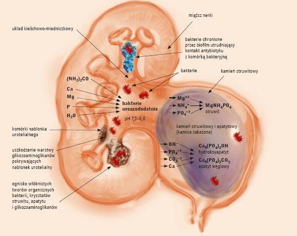 Przegląd Urologiczny - Kamica struwitowa
