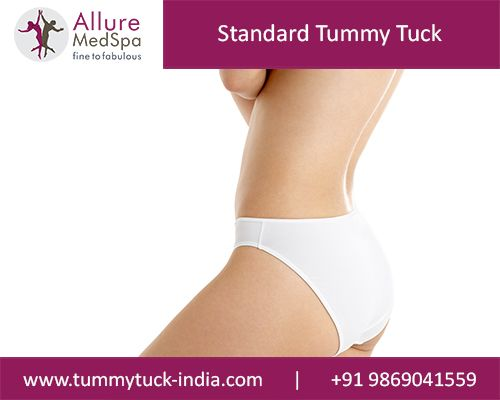 A standard Tummy Tuck is the most common abdominoplasty for women who done having babies and want to improve in their entire abdominal region.
