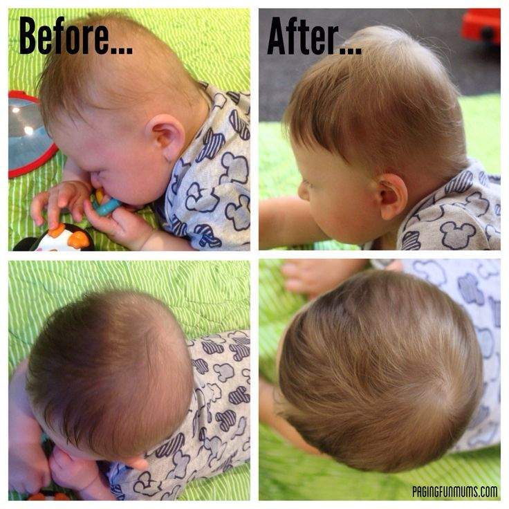 22 Best Flat Head Syndrome In Babies Plagiocephaly