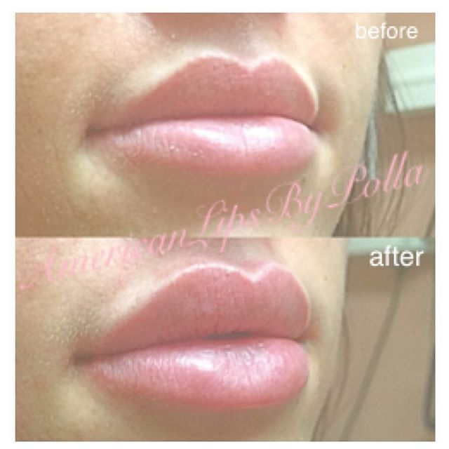 Before and after #Juvederm#lipfillers#lipaugmentation#lipenhancement by #polla_master_injector #AmericanLipsByPolla AKA #juvedermqueen#botoxqueen#laserqueen #only1 #number1 in #glendale #burbank #LA #california areas. #advanced#aesthetics#dermalfiller#lipinjections #kyliejenner#kimkardashian#amrezy#vegasnay#anastasiabeverlyhills#hudabeauty#beauty#hot#lips