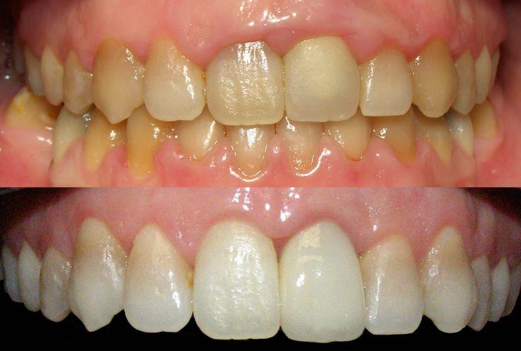 Cirugía oral #clinica dental http://www.ceuskalduna.com/tratamientos/tratamientos-de-estetica