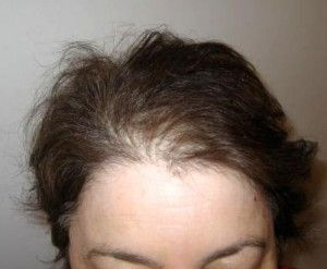 Thinning hair after WLS surgery