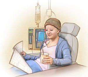 6 Efeitos Colaterais da Quimioterapia não esperados pelos Pacientes  Antes de iniciar a quimioterapia, a maioria dos pacientes já espera por efeitos colaterais mais comuns, como náuseas, fadiga e perda de cabelo. No entanto, a lista é bem mais longa e não está restrita apenas a esses efeitos mais comuns. A quimioterapia é um tratamento sistêmico, que afeta todo o corpo podendo provocar inúmeros efeitos colaterais.