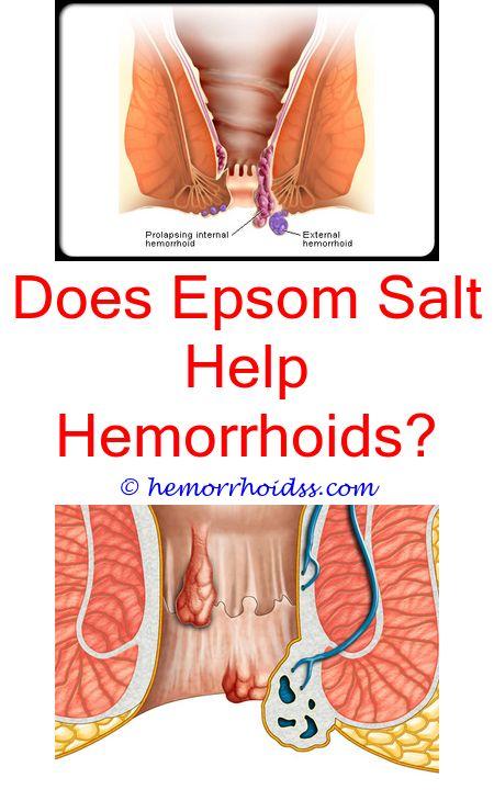 bleeding external hemorrhoids