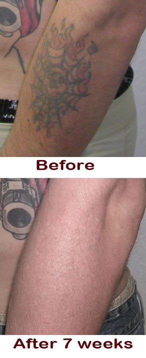Best 25 natural tattoo removal ideas on pinterest for How to get rid of a tattoo at home