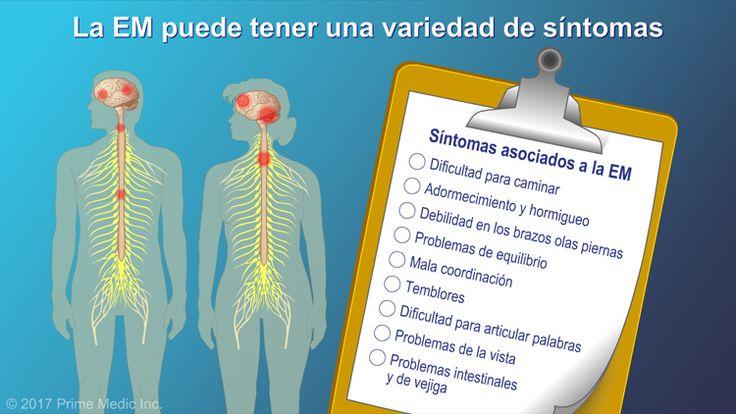 La EM se puede asociar a una variedad de síntomas.slide show: explicación de la esclerosis múltiple. en esta presentación de diapositivas se describen las causas, los síntomas comunes y la naturaleza de la esclerosis múltiple, así como distintos tipos de farmacoterapias utilizadas para el tratamiento de la enfermedad.